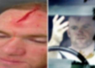 Rooney'nin yaralı yüzü manşet oldu