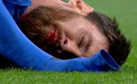 Marcelo'dan Messi'ye dirsek anı! Kanlar...