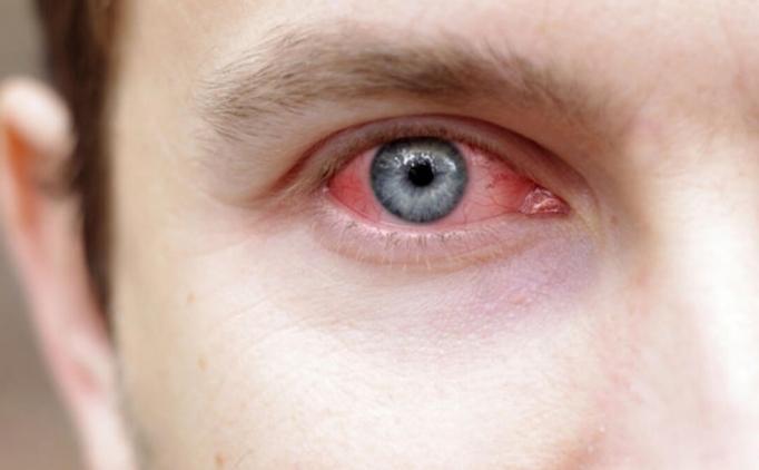 Konjonjktivit nedir? Korona virüs belirtileri arasında mıdır?